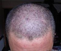 头部患有银屑病怎么治疗好