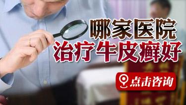北京市有哪些牛皮癣医院